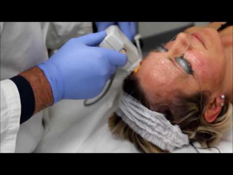 Casi di trattamento di varicosity