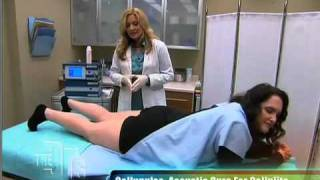Shockwave Treatment for Cellulite and More