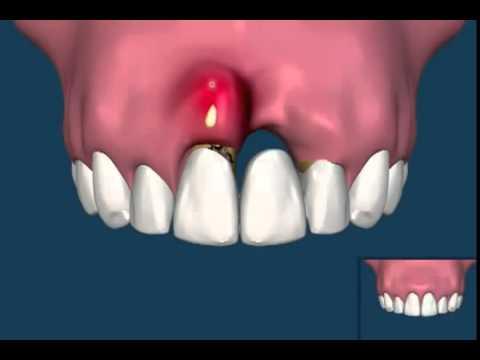 Dibdib implants in binawi bakit