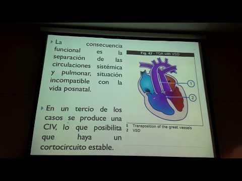 La presión arterial 170 95