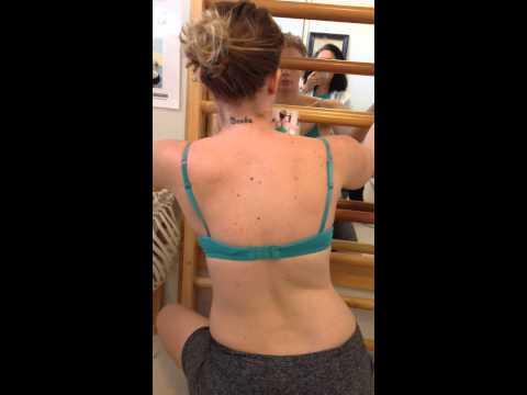 Formazione didoneità a una curvatura di spina dorsale