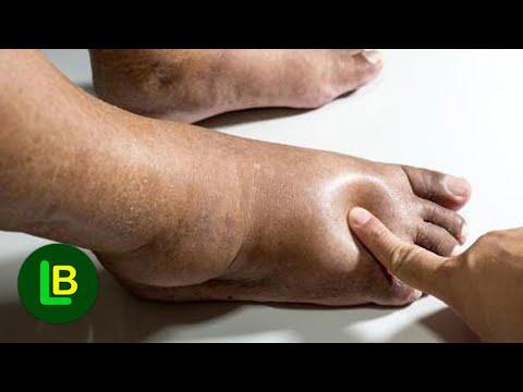 Fájdalom és gyulladás mint a prosztatitis jele