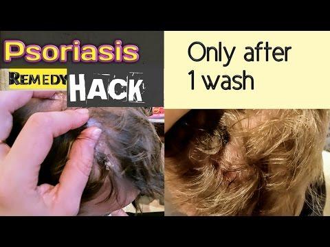 Le psoriasis comme moultifaktornoe la maladie