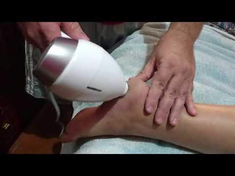 O programa de tratamento de um fungo em pregos