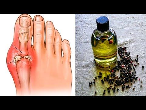 Болит поясница и левая нога после родов