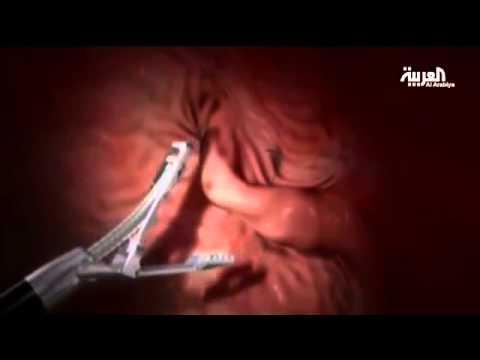 Pose أحدث تقنية لتصغير المعدة بدون جراحة