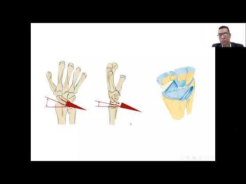 Unguent pentru artrita reumatoidă a genunchiului