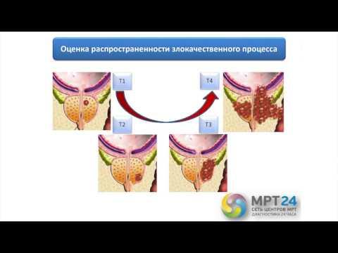 Гормональная терапия при раке простаты 4 стадии