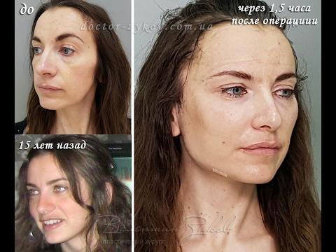 Отзывы о маска для лица мед и аспирин отзывы