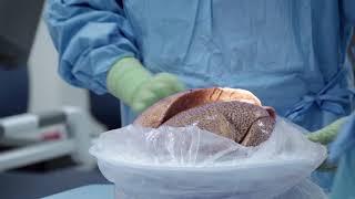 Lung transplant success