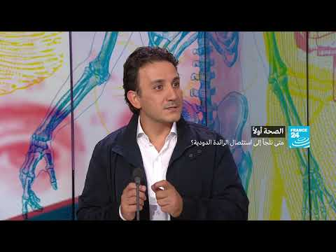 العرب اليوم - شاهد:طبيب يكشف حالات اللجوء إلى استئصال الزائدة الدودية