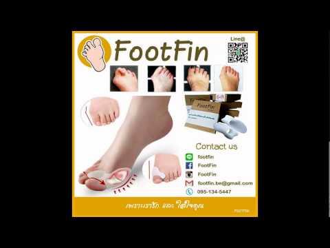 การกำจัดของความพิกลพิการเท้า