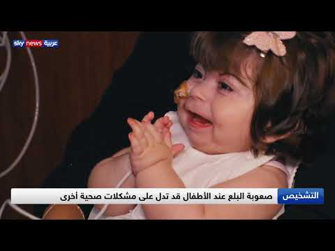 العرب اليوم - شاهد: صعوبات البلع عند الأطفال وكيفية التعامل معها