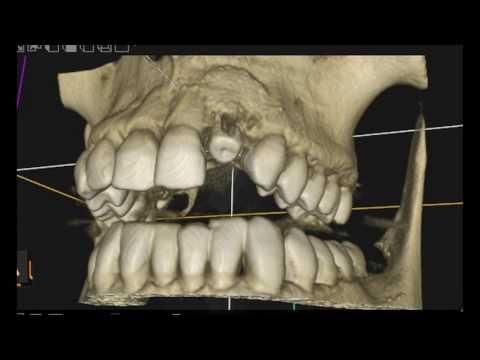 НКР, Направленная костная регенерация, имплантация