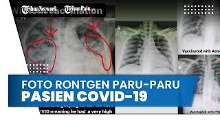 Viral Perbedaan Paru-paru Pasien Covid-19 yang Divaksin dan Tidak, Begini Penjelasan Dokter