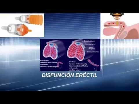 Hiperplasia prostática postatroficheskaya