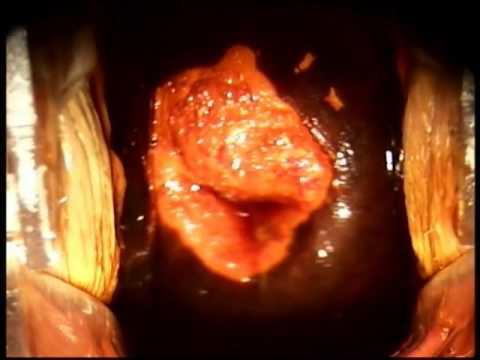 Miopia se dezvoltă brusc