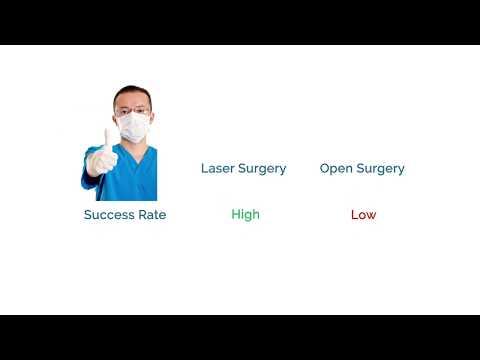 Operațiunea de operare varicoz