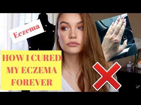 Tratamento de eczema terapia externa