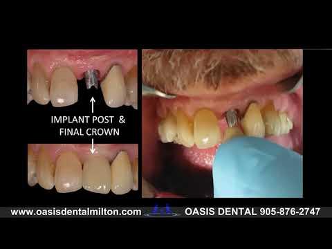 BEFORE & AFTER DENTAL IMPLANT: Upper Front Tooth | Milton, Oakville, Burlington, Mississauga