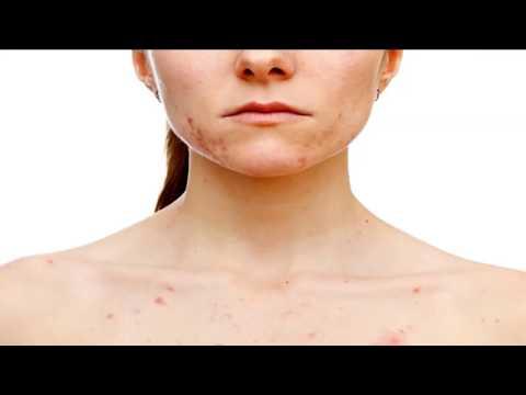 Corrente de castor de tratamento de eczema