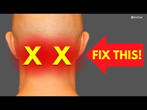 How to Melt Away Neck Pain and Tension Headaches