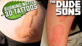 3D Tattoos With Burning Nettles Challenge! - The Dudesons