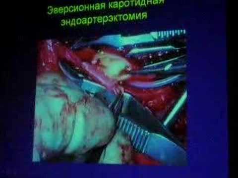 Per gambe da varicosity a gravidanza