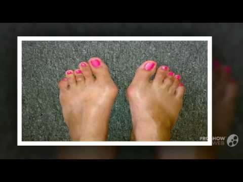 แบนราบเท้า valgus