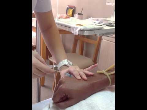 การกำจัดของหลอดเลือดดำที่ขาเคิร์สต์