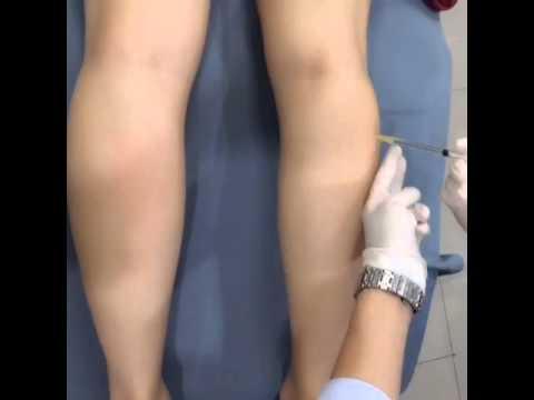 ความผิดปกติของนิ้วเท้าใหญ่