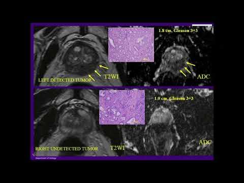 Il cancro alla prostata Cranberry