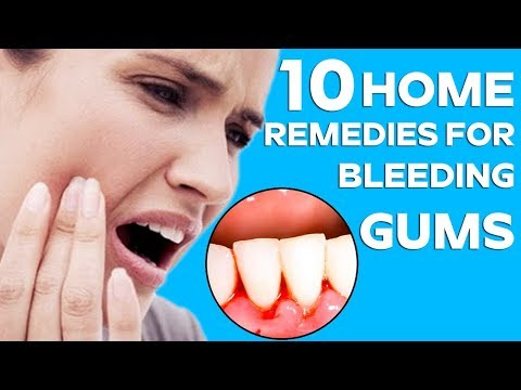 Video Top 10 Home Remedies to Heal Bleeding Gums  || Health & Beauty