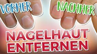 NAGELHAUT SCHNELL & EFFEKTIV ENTFERNEN!   Vorher - Nachher vergleich