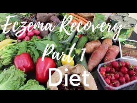 How to treat ECZEMA naturally | Healing eczema naturally diet |  PART 1|