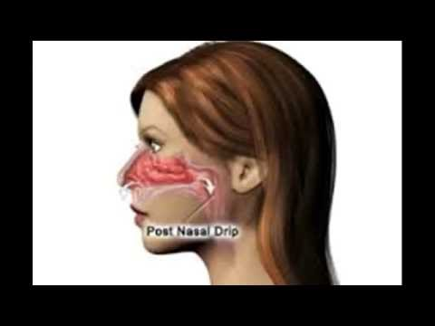 Video How to treat and cure post nasal drip