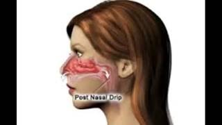 How To Treat And Cure Post Nasal Drip