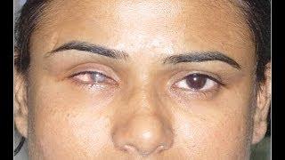 Prosthetic Eye Post Enucleation Evisceration Eye Surgery in Mumbai, India - Dr. Debraj Shome