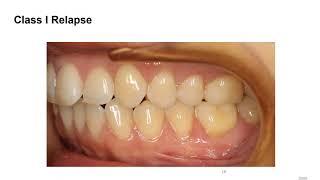 Dental Treatment: Accelerated Orthodontics Apr 14, 2020