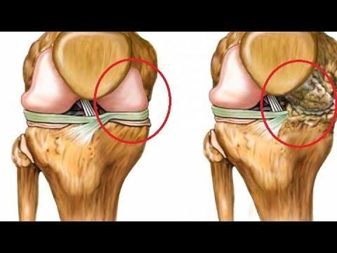 Osteocondrosis dolor generalizado