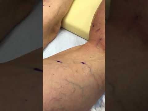 Warum kratzen sich die Venen auf den Beinen und den Händen
