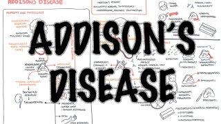 Ahoj New video on Addisons Disease Addisons disease is a disease characterised