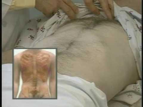 Ein Elektron in der Behandlung von Prostatitis Preis