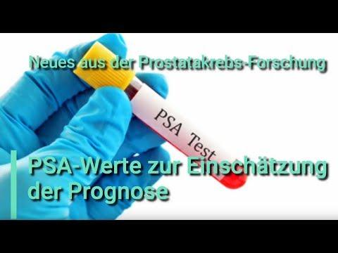 Prostatitis és mágnes