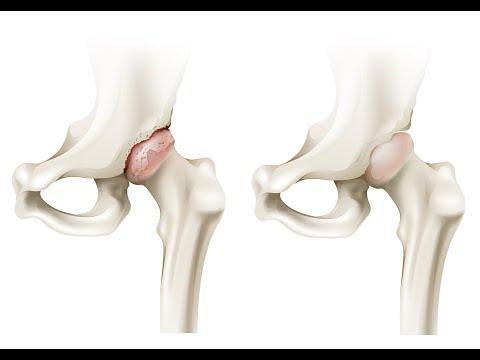 Reemplazo de rodilla no es peligroso
