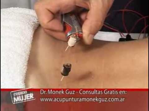Aggiornamento di sale in reparto cervicale di una spina dorsale