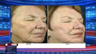 Alma Skin Tightening