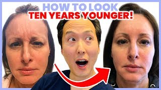 Doctor Reveals How to Look 10 Years Younger Without Surgery - Dr. Anthony Youn