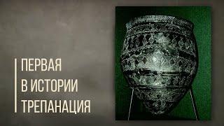 Первая в истории трепанация черепа, кумыс и тандыр