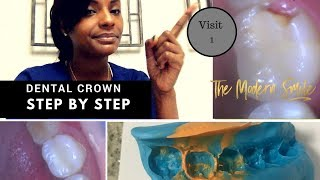 Dental Crown step by step   photos with explanation